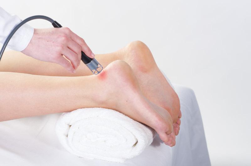 BTL_HIL_applications_4_Achilles-tendonitis