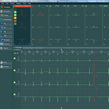 BTL_CardioPoint-Holter_Template_view-2