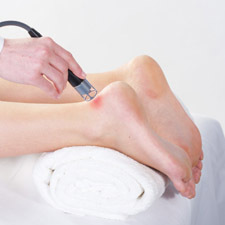 BTL_HIL_applications_7_Achilles-tendonitis