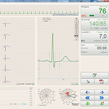 BTL-Cardiopoint-Ergo_600_3_Record_evaluation