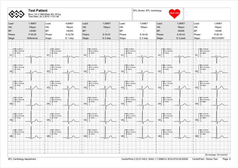 BTL-Cardiopoint-Ergo_report_3-sample