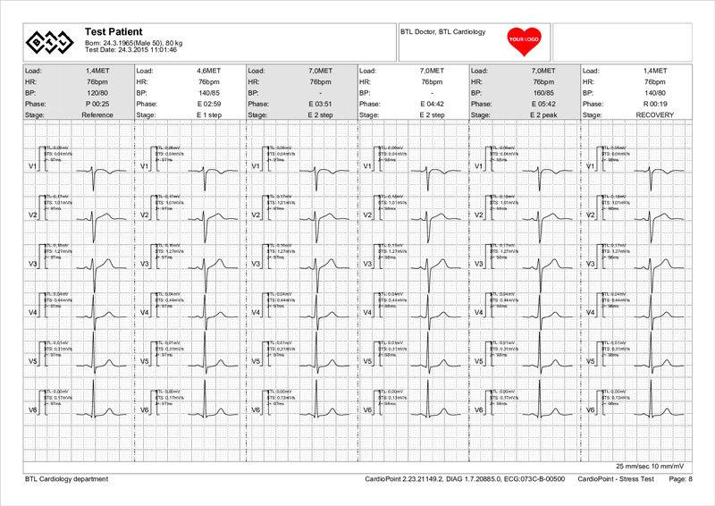 BTL-Cardiopoint-Ergo_report_3-sample