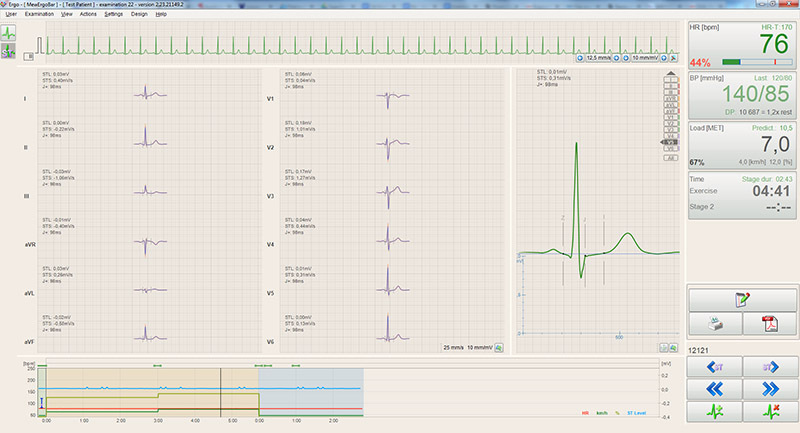 BTL-CardioPoint-Ergo_300_3_Record_evaluation